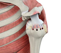 Rotator Cuff Repair Rehabilitation Protocol