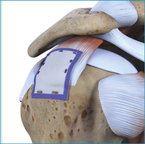 The Rota on Medical Rotator Cuff System